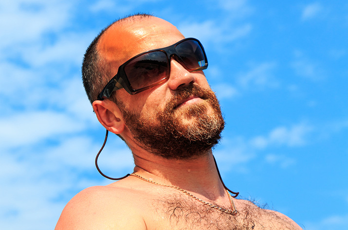 Bald man with sunburn