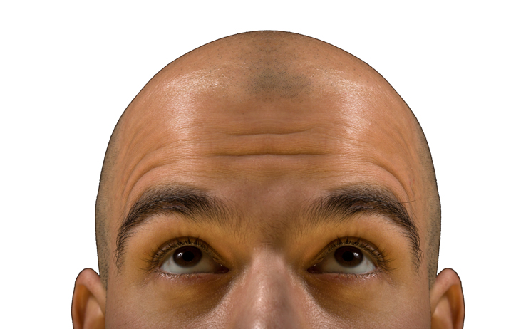 DHT: Explaining The Hormone Behind Hair Loss